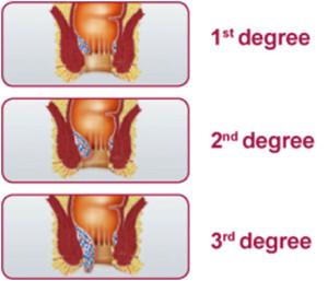 hemoroidi